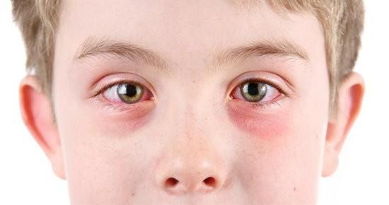 Göz alerjisi, göz alerjisi türleri, göz alerjisi tedavisi