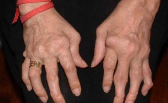 Romatoid artrit nedir, Romatoid artrit, Romatoid artrit tedavisi