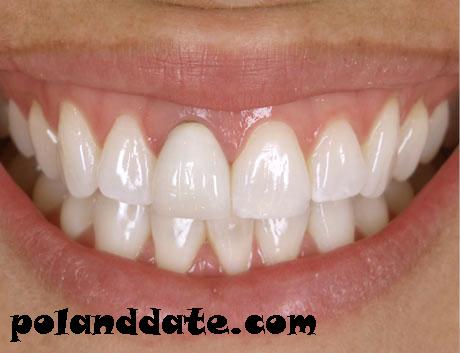 zirkonyum, zirkonyum diş fiyatları, estetik diş
