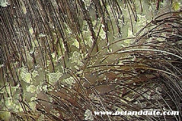 kepeğe doğal çözüm, kepek nasıl geçer, kepek neden oluşur