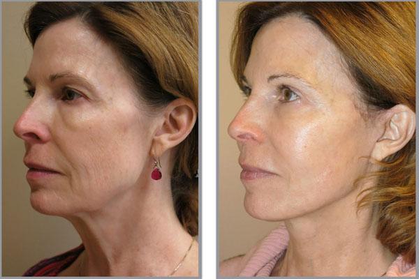 yüz germe ameliyatı, yüz gerdirme operasyonları,  yüz gerdirme