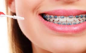 ortodonti fiyatları ne kadar, ortodonti tedavi fiyatları, ortodonti fiyatları nasıl