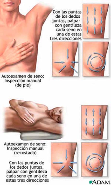 göğüs kanseri belirtileri, göğüs kanserini anlama