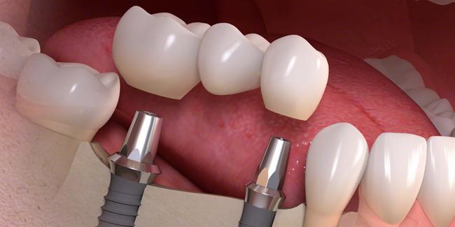 implant markaları, güvenilir implant markaları, diş implant markaları