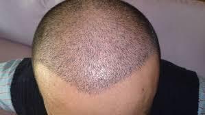 saç ekim doktoru, saç ekimi yaptırma, saç ekimi yapan doktor