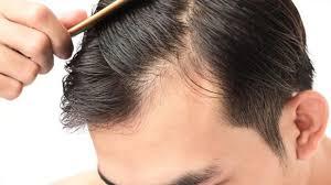 saç ekimi fiyatı, saç ektirme fiyatları, saç ekimi fiyatları ne kadar