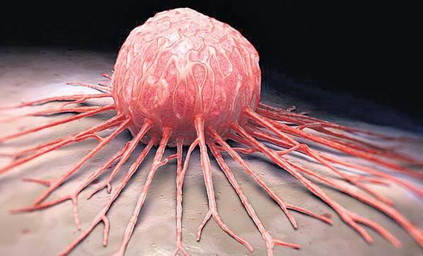 kanser hastalığı, kanser tedavisi, kanser belirtileri
