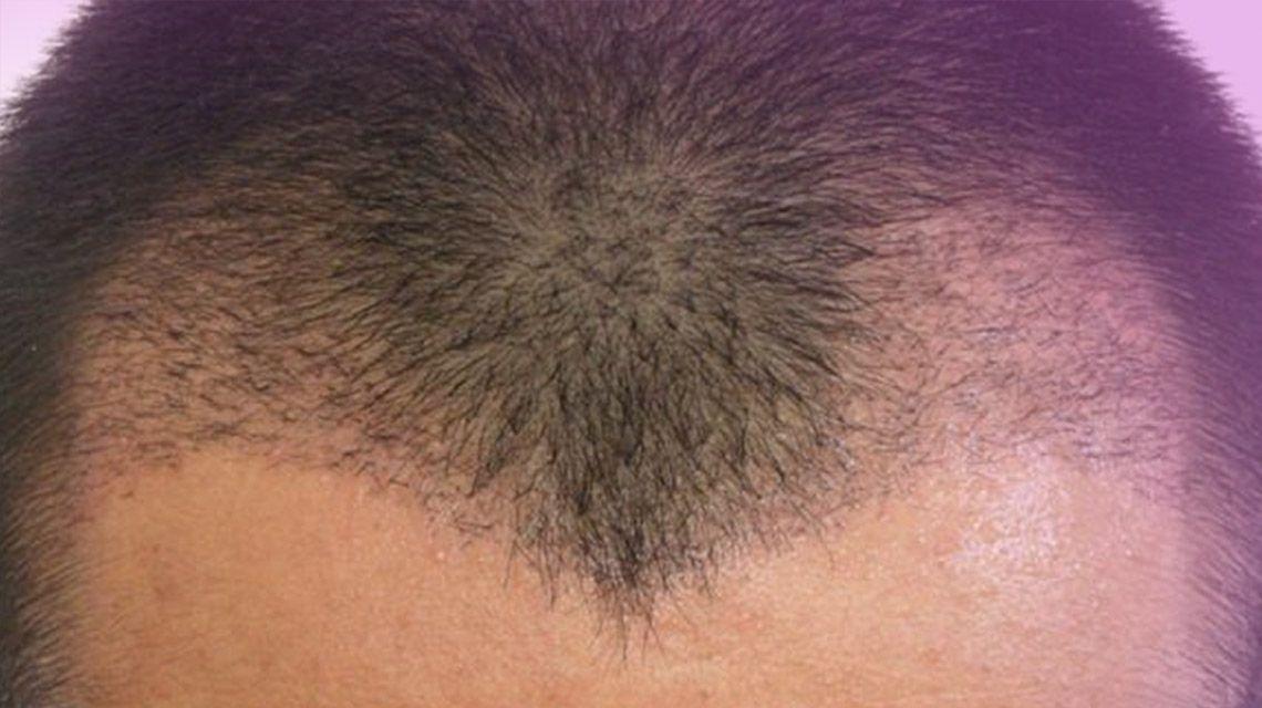 saç ekimi, başarılı saç ekimi, başarılı saç ekimi yapımı