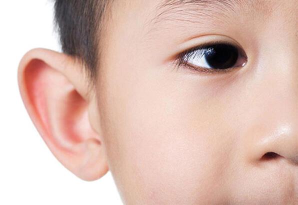kulak anomalileri, kepçe kulak, kepçe kulak anomalisi