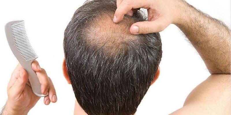 saç mezoterapisi, saç dökülmesini önleme, saç dökülmesi nasıl önlenir