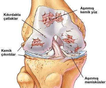 eklem kıkırdak bozukluğu, eklem hastalıkları, eklem kıkırdak bozukluğu tedavisi